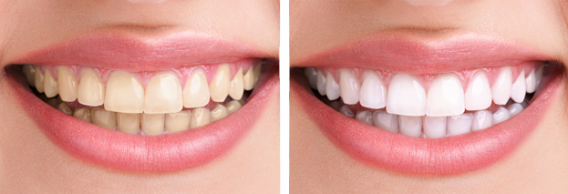 teeth whitening dental care of walnut creek